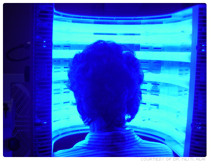 bluelighttherapy